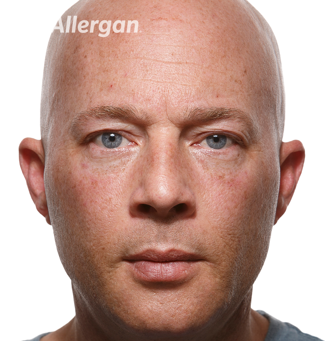 Juvederm | Caucasian male model 1 After